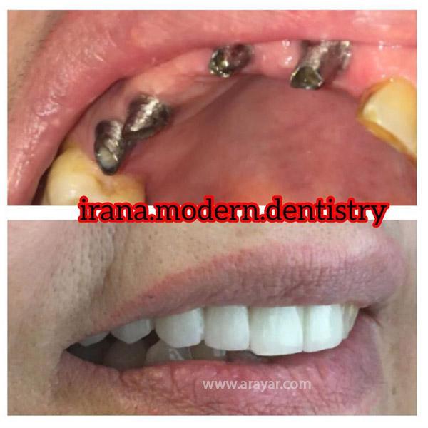بهترین مرکز ایمپلنت دندان در شمال تهران