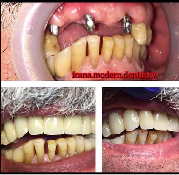 بهترین مرکز ایمپلنت دندان، مرکز ایمپلنت فک و صورت ایرانا
