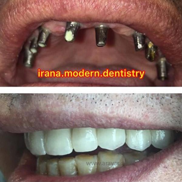 بهترین مرکز ایمپلنت دندان در تهران