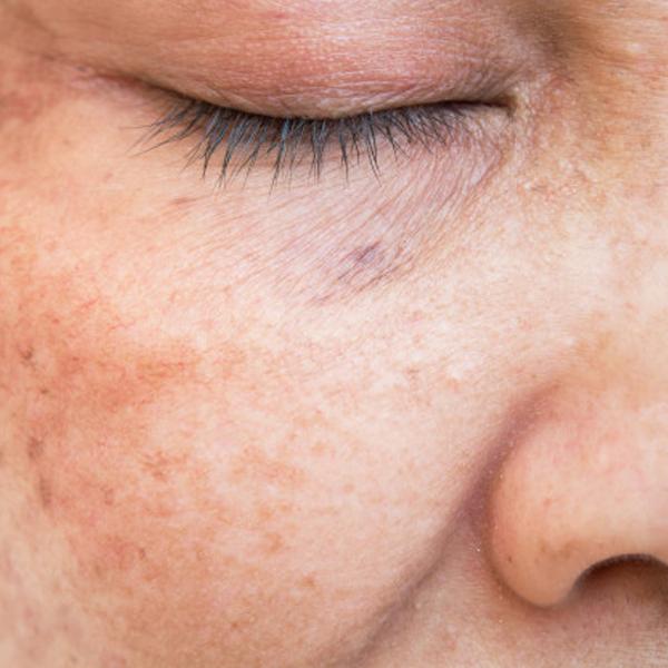 راههای مراقبت از پوست صورت در برابر نور آفتاب