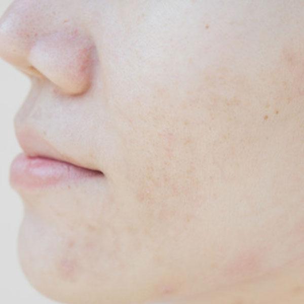 درمان لک های صورت با کرم ضد لک