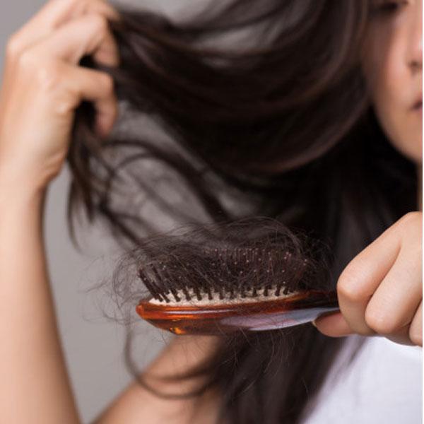 ریزش مو در بانوان