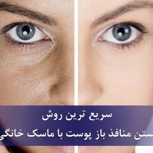 روش خانگی سریع بستن منافذ پوست با ماسک خانگی   درمان منافذ باز پوست