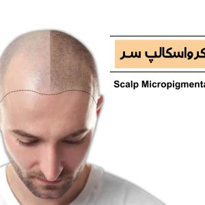 اسکالپ سر یا میکروپیگمنتیشن پوست سر چیست؟ | میکرواسکالپ یا هاشور کف سر