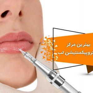 میکروپیگمنتیشن لب چیست؟ | بهترین مرکز میکروپیگمنتیشن لب در تهران
