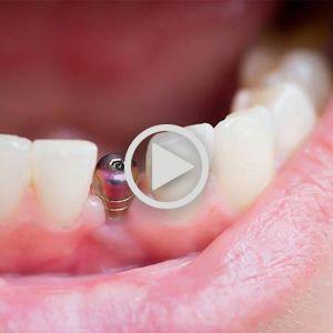 تحلیل استخوان فک | ایمپلنت دندان | پیوند استخوان در ایمپلنت