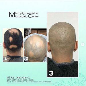 تصاویر میکرواسکالپ سر  نظرات درباره میکرواسکالپ یا اسکالپ میکروپیگمنتیشن