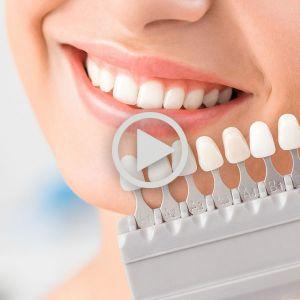 روکش دندان | انواع روکش دندان | روکش ایمپلنت دندان