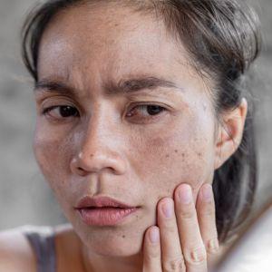 لک صورت چیست؟ روش درمان تخصصی لک صورت