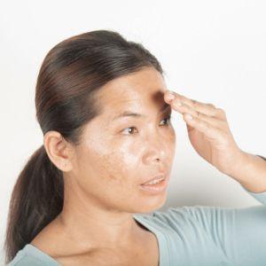 مراقبت از پوست در برابر آفتاب   راههای مراقبت از پوست صورت در مقابل نور آفتاب