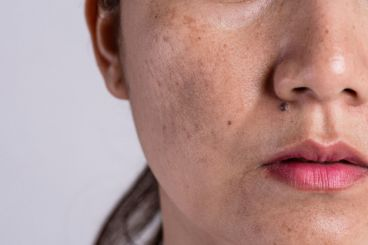 علت لک صورت چیست؟ |  درمان لک صورت با ماسک ضد لک
