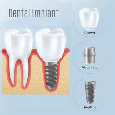 ایمپلنت دندان در دوران کرونا