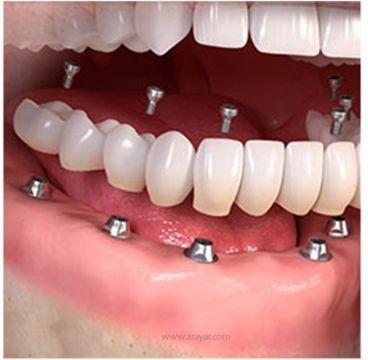بهترین متخصص ایمپلنت کیست؟  متخصص ایمپلنت دندان