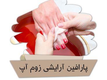 پارافین درمانی