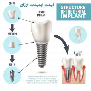 هزینه ایمپلنت دندان چقدر است؟قیمت ایمپلنت دندان