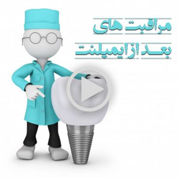 مراقبت ایمپلنت و کاشت دندان