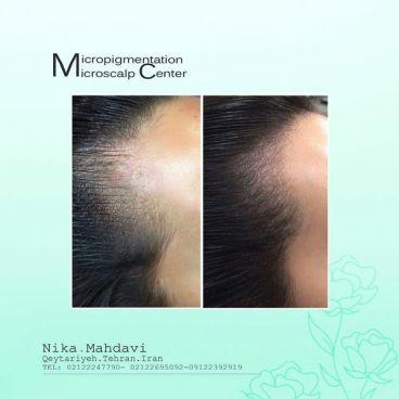 مقایسه میکرواسکالپ و کاشت مو