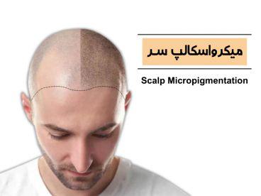 اسکالپ سر یا میکروپیگمنتیشن پوست سر چیست؟