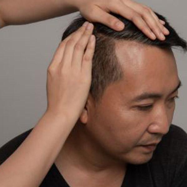علت ریزش مو در آقایان