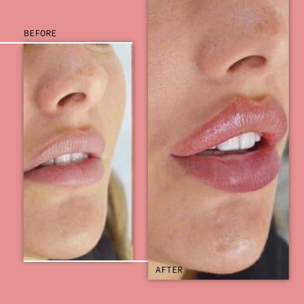 عکس ژل لب قبل و بعد