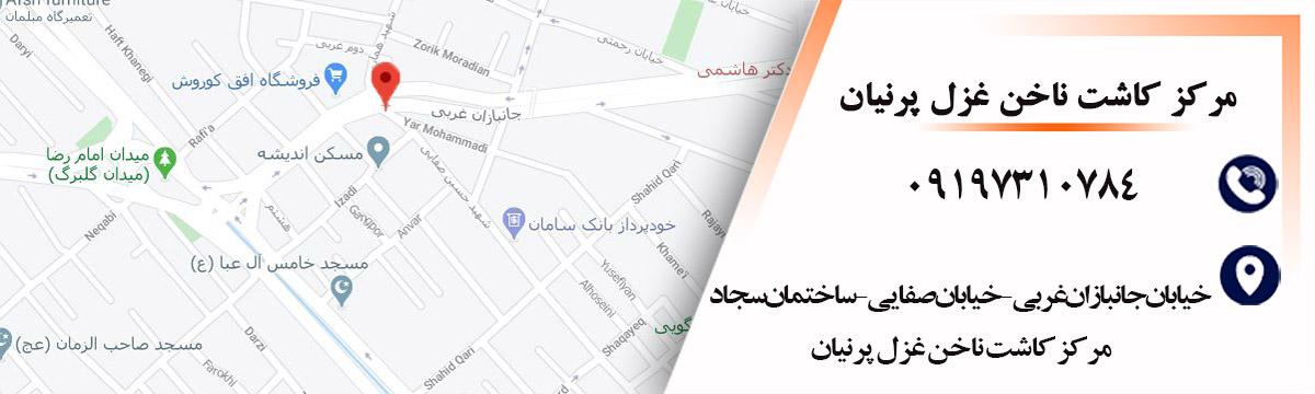مرکز کاشت و طراحی ناخن شرق تهران