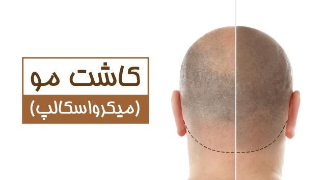 تفاوت کاشت مو با میکرواسکالپ