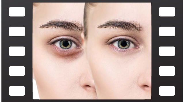 راهکارهای درمان گودی زیر چشم