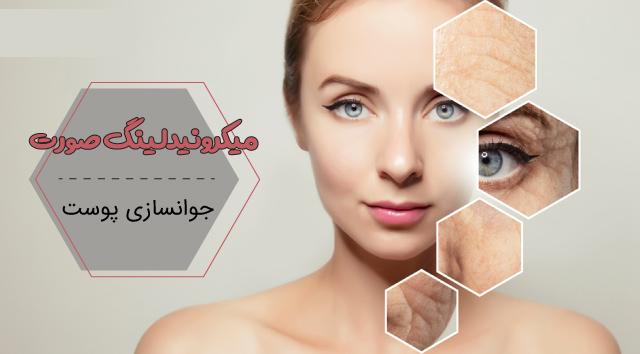 میکرونیدلینگ صورت برای جوانسازی پوست