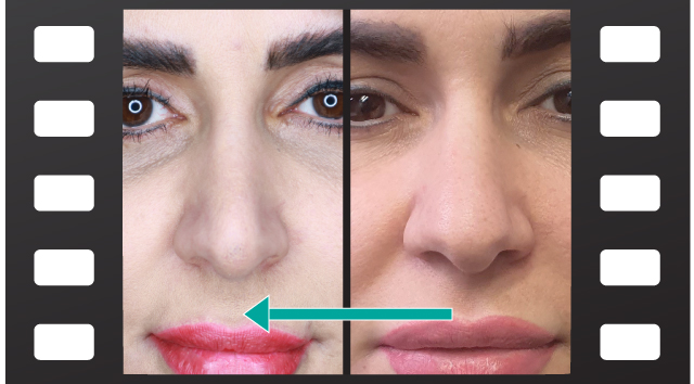 فیلم کوچک کردن بینی بدون عمل جراحی