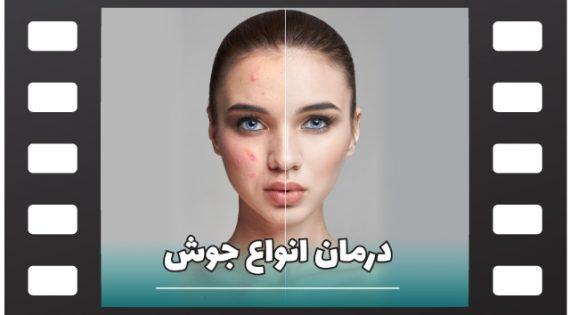 انواع جوش صورت و روش های درمان آن