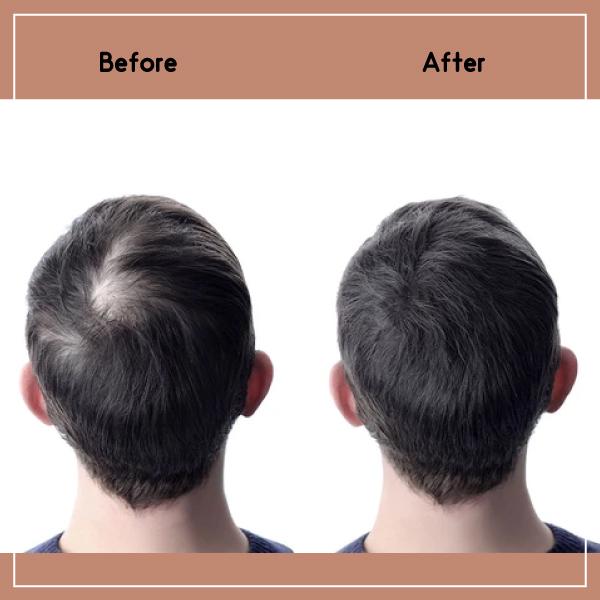 قبل و بعد از مزوتراپی مو